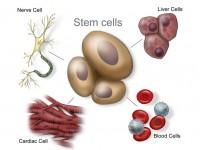 การรักษาด้วยวิธีการปลูกถ่ายสเต็มเซลล์เม็ดเลือด ทำในผู้ป่วยโรคอะไร